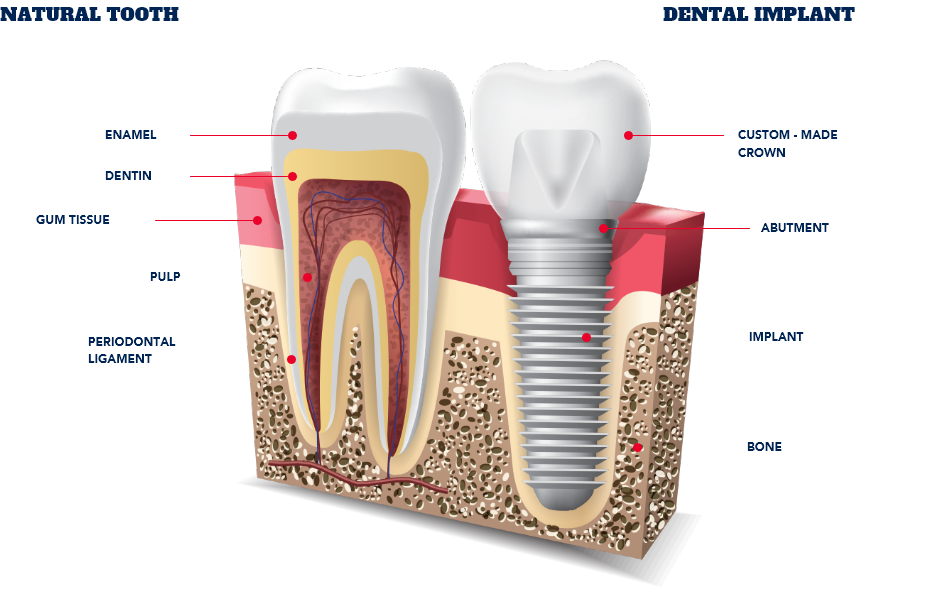 dental implants-star-dental