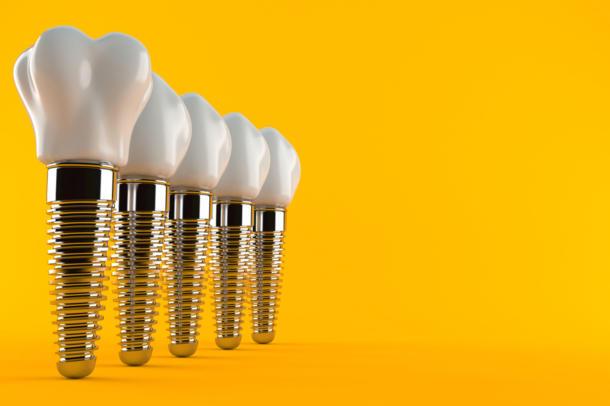 Dental implants vs. dental bridges: which one is right for you?