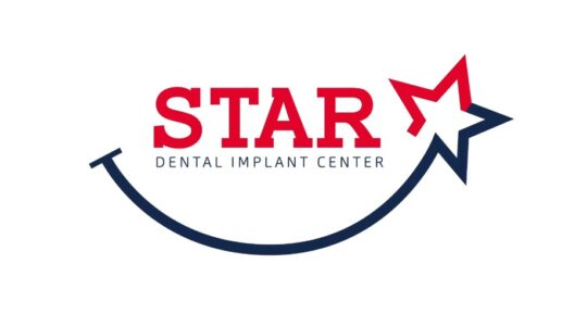 Important questions to ask when choosing your dental implant provider